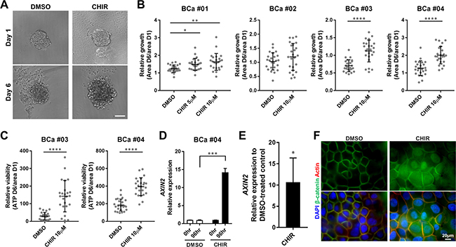 CHIR enhances proliferation of primary bladder cancer cells in organoid culture with activation of Wnt/β-catenin pathway.