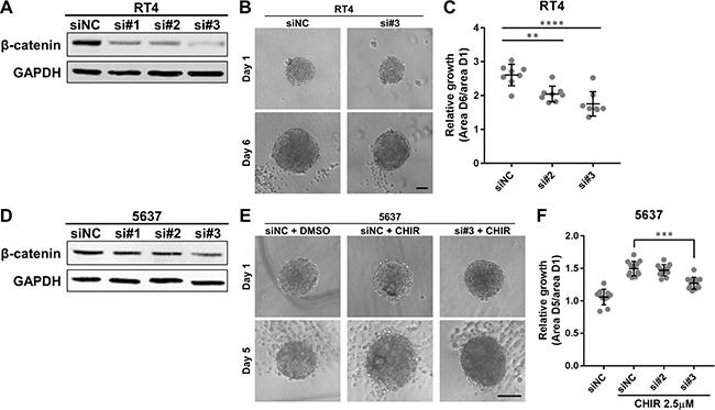 β-catenin is required for growth of bladder cancer organoids.