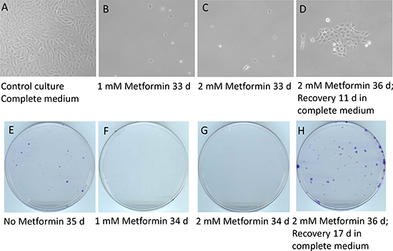 Metformin inhibits the emergence of cell colonies in glutamine-free medium but does not eradicate quiescent cancer cells.