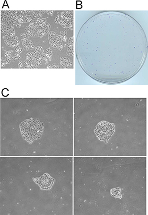 Selection of metabolically adaptable cells from the FC-IBC02 cell line.