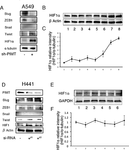Increased expression of HIFα and/or Twist in A549 and H441 cells induced by the inhibition of PIMT and Thapsigargin.
