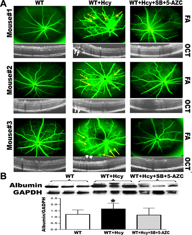Effect of inhibition of DNA methylation and histone deacetylation on Hcy-induced BRB dysfunction.