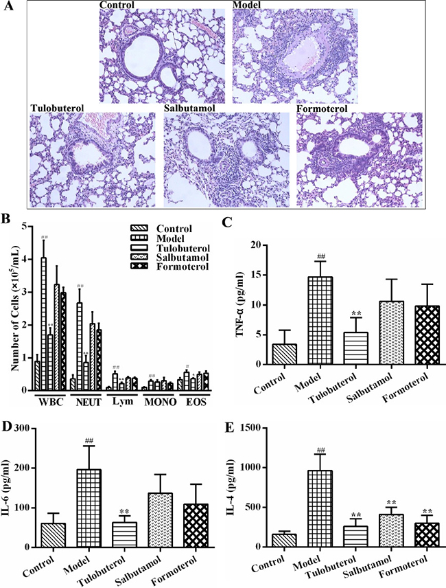 The different anti-inflammatory activities of tulobuterol patch, salbutamol and formoterol in allergic asthma mice.