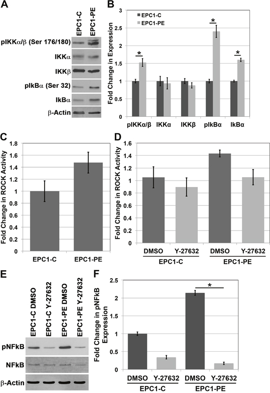 The IKK pathway and Rho-kinase activity play a role in the activation of NFkB.