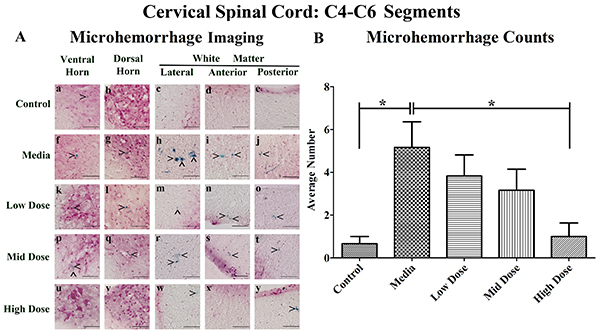 Distribution of microhemorrhages within the cervical (C4-C6) spinal cord of G93A mice after cell transplantation.