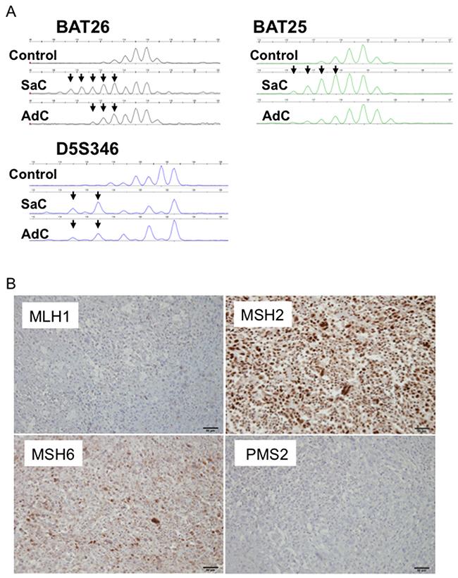 MSI profiles in Case 1.