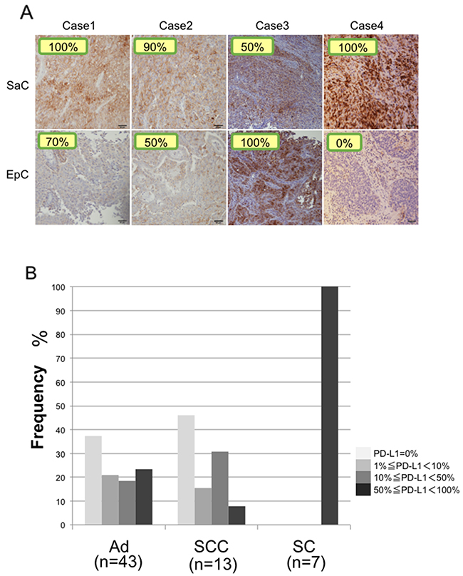Immunohistochemical staining of PD-L1.