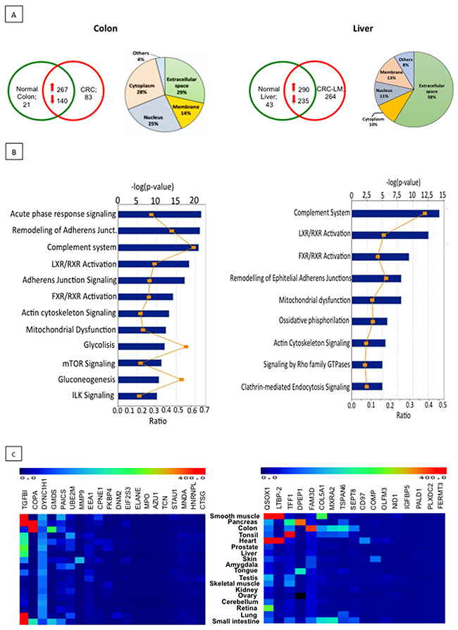 Proteomic analysis of EXPEL extruded fluid identifies potential cancer biomarkers.