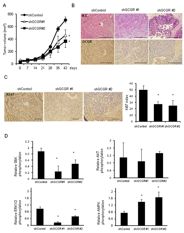 Tumor growth in type 2 diabetes model mice GCGR knockdown significantly inhibits the growth of allograft tumors in type 2 diabetes model mice.