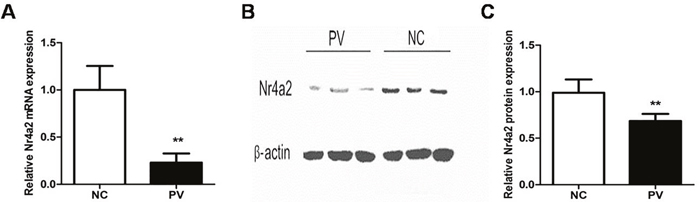 Expression of Nr4a2 in CD4+ T cells from patients with PV and healthy control subjects.