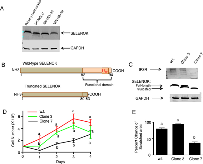 Loss of functional SELENOK in melanoma cells leads to decreased proliferation.