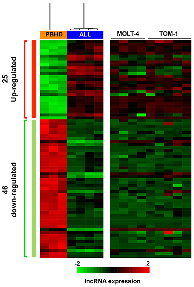 lncRNAs differentially expressed in ALL samples compared to healthy donor samples.