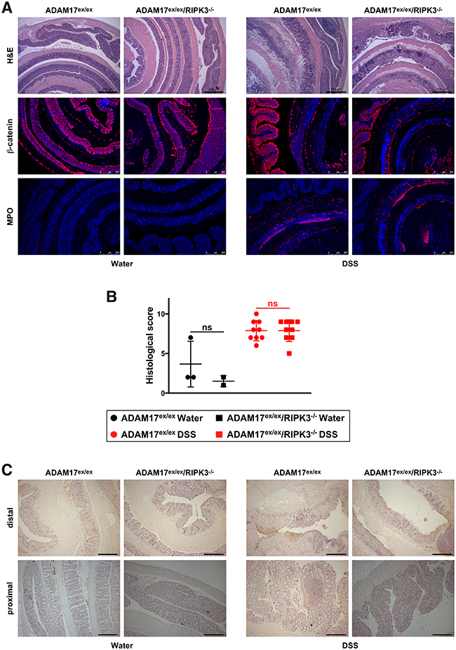 DSS-induced acute colitis causes similar tissue destruction, loss of barrier integrity, immune cell infiltration, and cell death in ADAM17ex/ex and ADAM17ex/ex/RIPK3-/- mice.