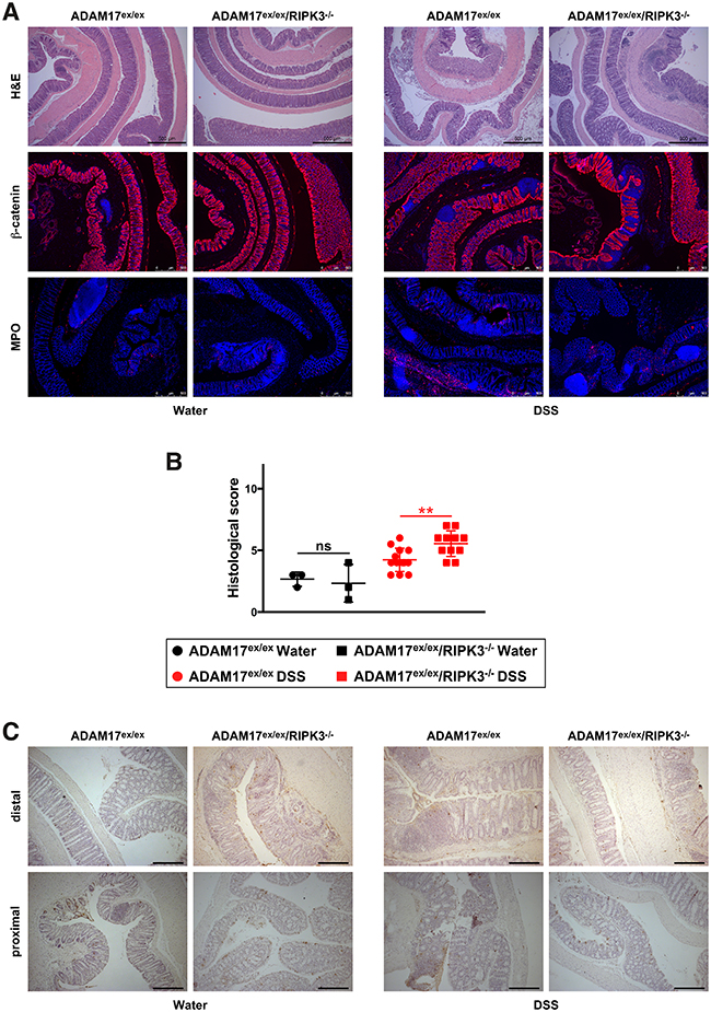 ADAM17ex/ex and ADAM17ex/ex/RIPK3-/- mice show comparable tissue destruction, loss of barrier integrity, immune cell infiltration, and cell death in DSS-induced chronic colitis.