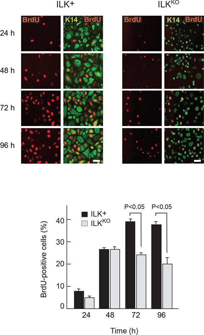 Proliferation defects in ILKKO keratinocytes.