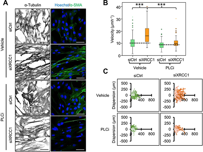 Calcium release is required for cytoskeleton contraction and migration of XRCC1 KD fibroblasts.
