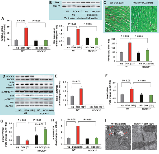 ROCK1 deletion inhibited doxorubicin-induced apoptosis, fibrosis and autophagy.