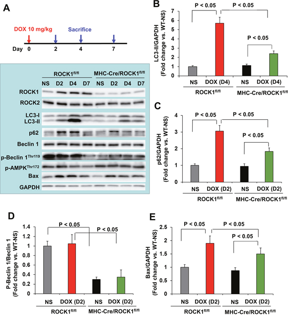 Cardiomyocyte-specific ROCK1 deletion also inhibited the early onset of doxorubicin-induced autophagy dysregulation.