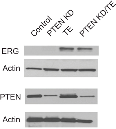 Characterization of protein expression in immortalized prostate cell lines with PTEN knockdown, TMPRSS2/ERG fusion gene expression or both alterations.