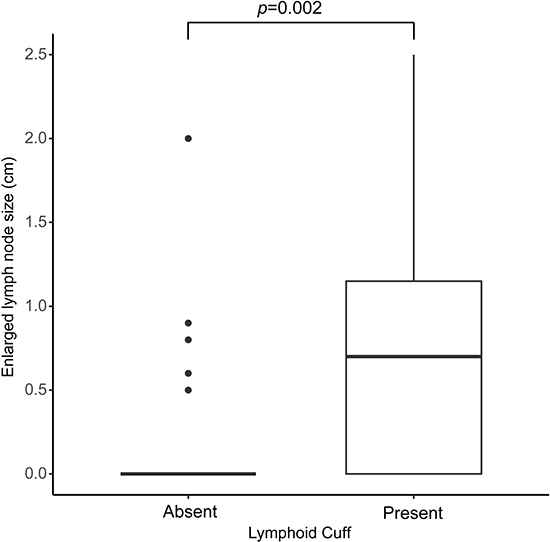 Size differences of regional lymphadenopathy in schwannomas with peritumoral lymphoid cuff and those without peritumoral lymphoid cuff (p = 0.002).