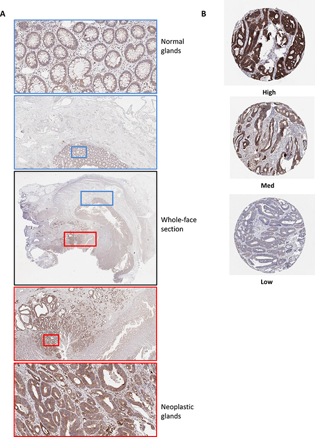 Optimization of immunohistochemistry staining protocol for Bcl-xL protein expression in CC.