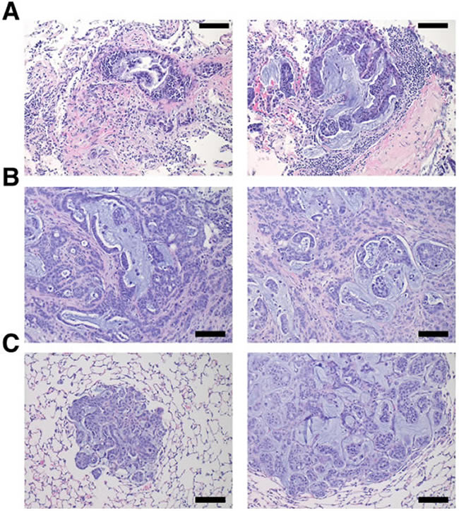 hM1 orthotopically grafted organoid (OGO) recapitulate human tumor histopathology.