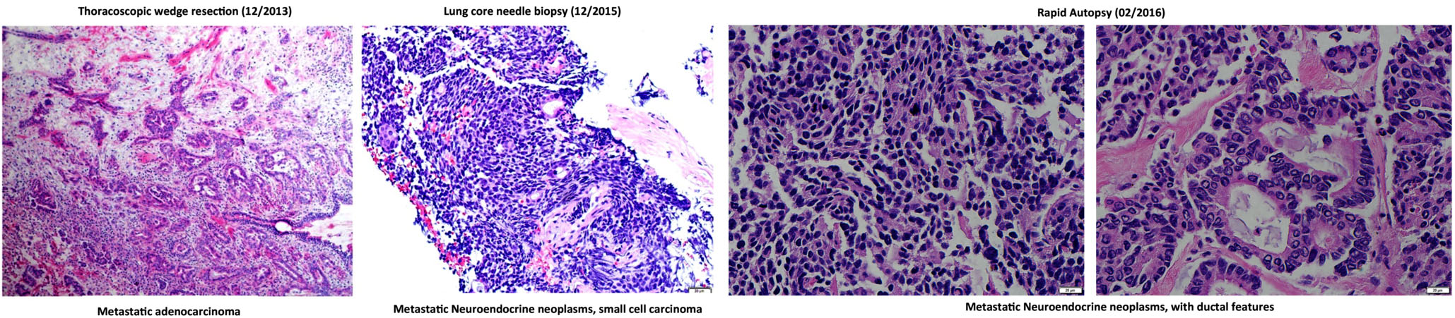 H&E staining of lung metastatic biopsy taken at the beginning (left) and end (middle and right) of liquid biopsy follow up.