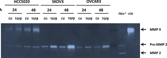 MMP-9 activity is increased in recently discovered ovarian cancer cell lines, but not HTB77 (SKOV3) or HTB161 (OVCAR3).