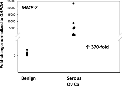 MMP-7 gene expression is upregulated in advanced serous EOC.