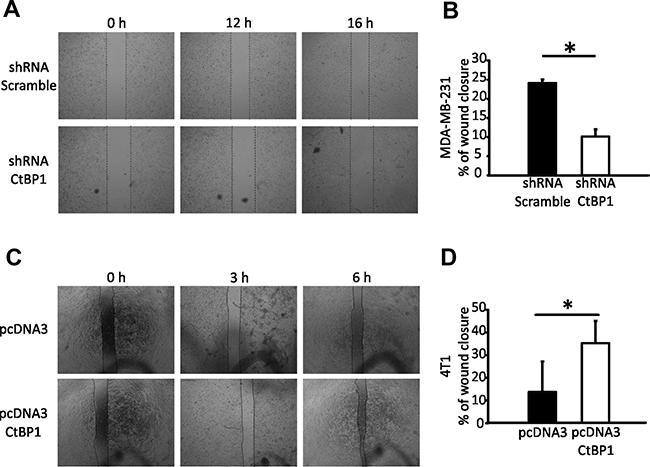 CTBP1 modulates BrCa cell migration.