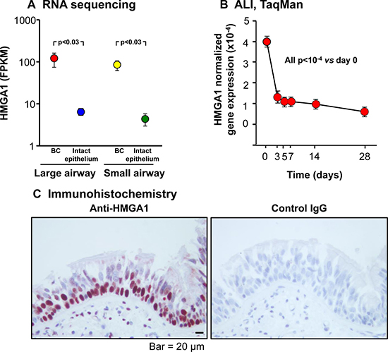 HMGA1 expression in intact large (LAE) and small airway epithelium (SAE), basal cells (BC) derived from LAE and SAE, and BC differentiated on air-liquid interface (ALI) culture.