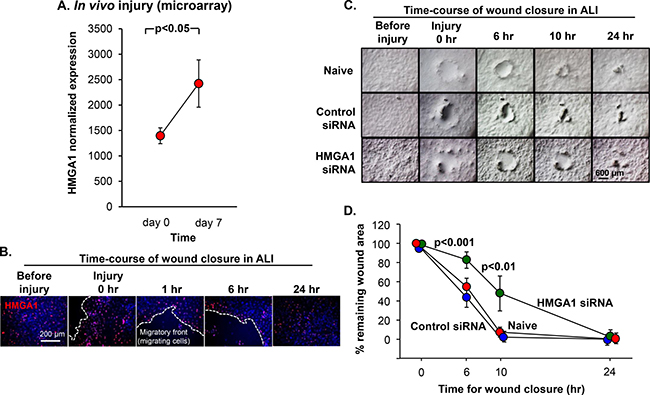 Role of HMGA1 in BC-mediated airway epithelial wound repair.