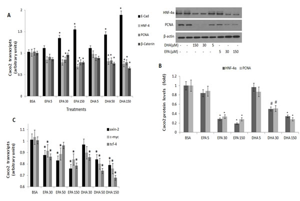 PCNA, E-cadherin, HNF-4α and β-catenin expression in Caco 2 cells treated with (n-3) PUFA.