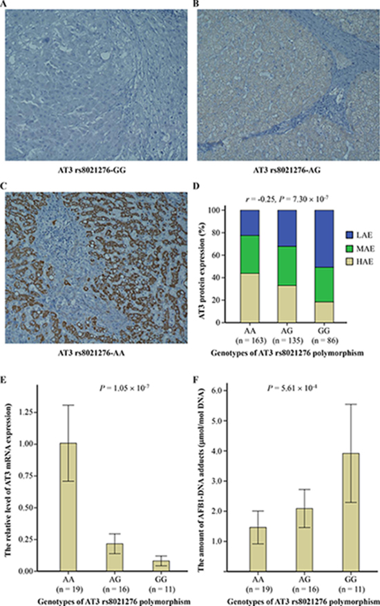The ataxin-3 (AT3) rs8021276 polymorphism significantly correlated with AT3 expression and aflatoxin B1 (AFB1)-DNA adducts in the liver tissues with cirrhosis.