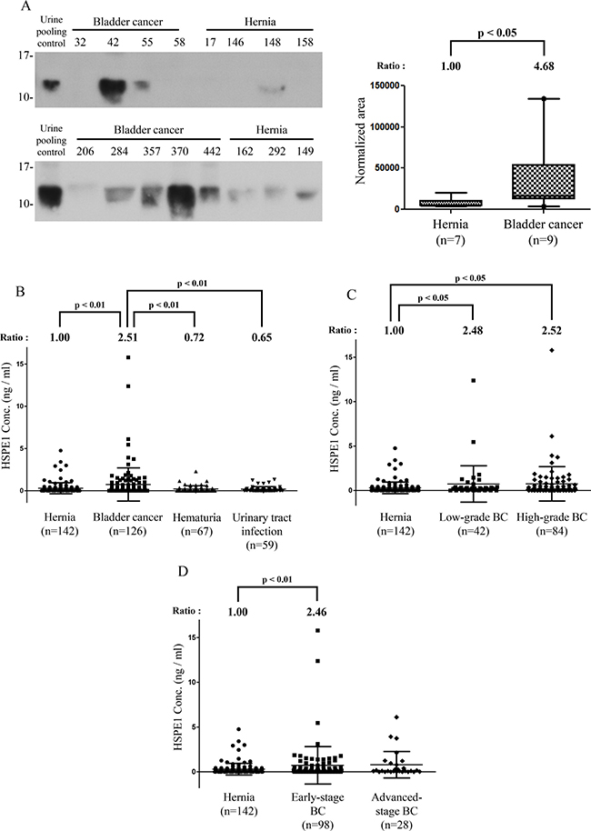 Methodological verification of HSPE1 in individual urine specimens from BC and hernia patients by antibody-based analysis.