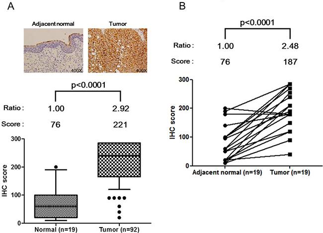 Up-regulation of HSPE1 in individual bladder tumor tissue specimens, determined by IHC.