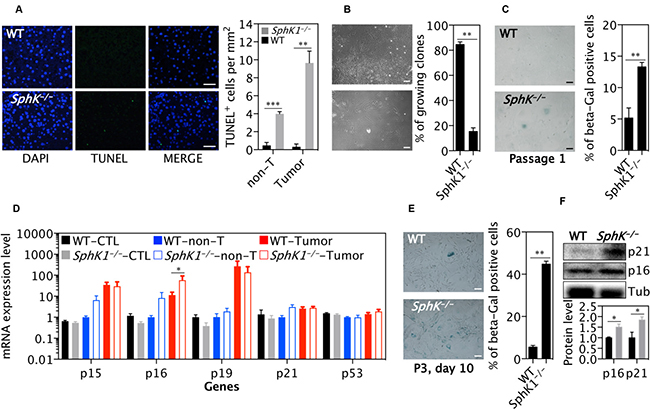 SphK1 deletion increases cellular senescence in primary tumor cells and MEF cells.