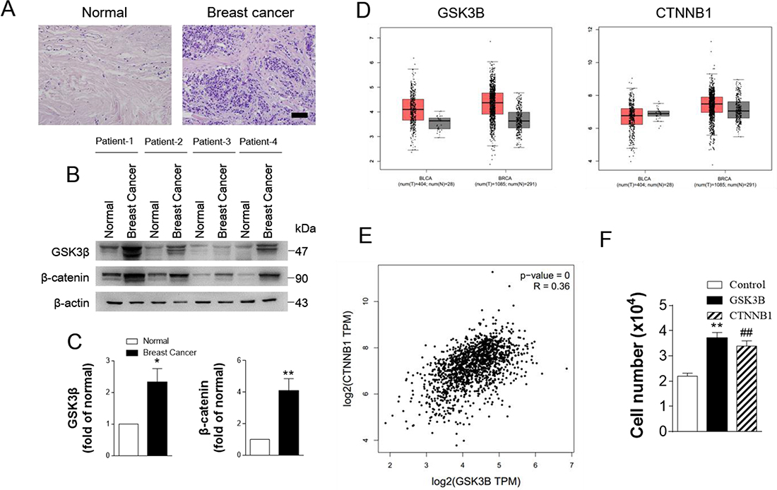 GSK3B is upregulated in breast cancer.
