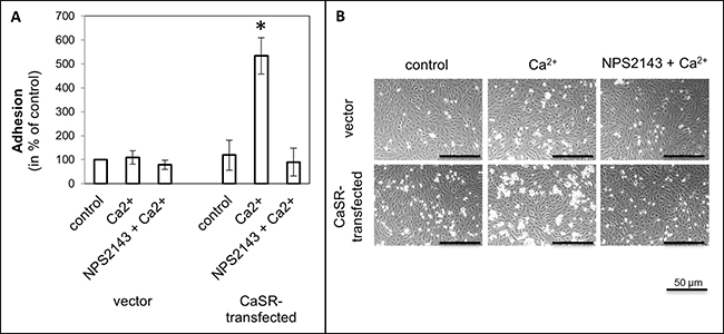 Cell adhesion of CaSR-transfected 786-O cells on endothelial cells (HUVEC).