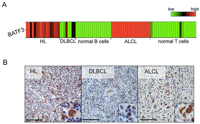 BATF3 is aberrantly expressed in several lymphoma entities.