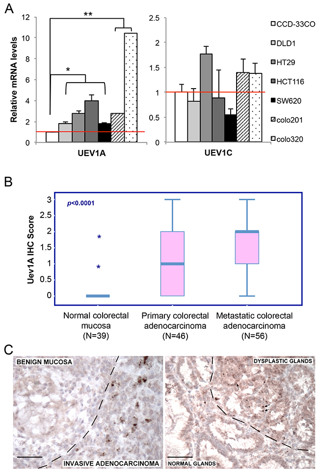 UEV1A is overexpressed in human colon cancer cell lines and tumor samples.