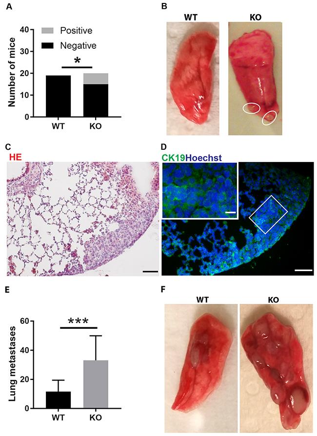 Tumor lung metastasis.