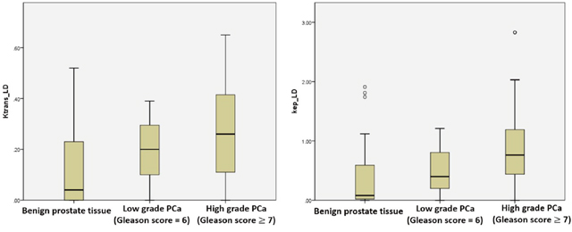 The boxplots of Ktrans _LD and kep_LD showing performance in low grade vs. high grade prostate cancer.