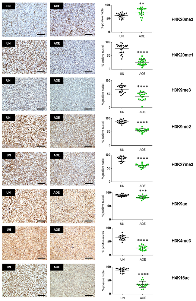 Quantification of histone modifications in AOE-reprogrammed tumours.