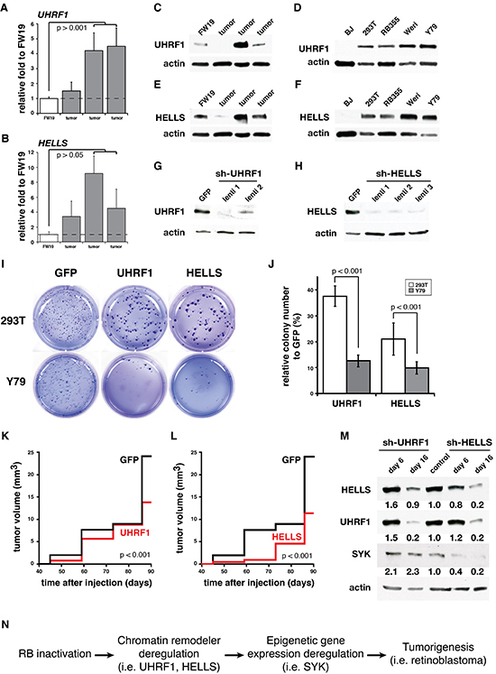 UHRF1 and HELLS are required for human retinoblastoma survival.