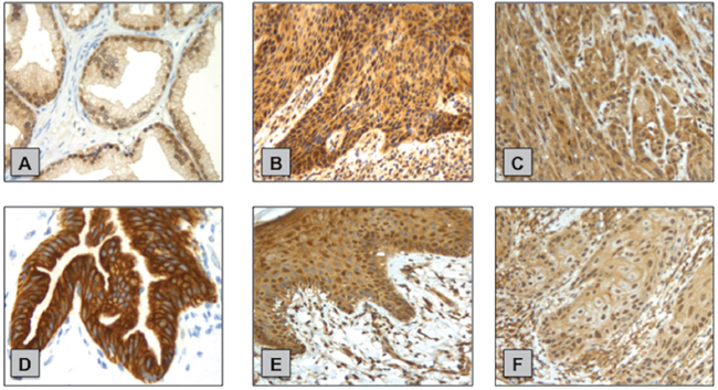 Examples of p-AKT (Ser473) and p-mTOR (Ser2448) IHC staining in normal penile tissue and primary PSCC samples.