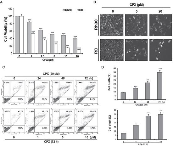 CPX decreases cell viability in rhabdomyosarcoma cells.