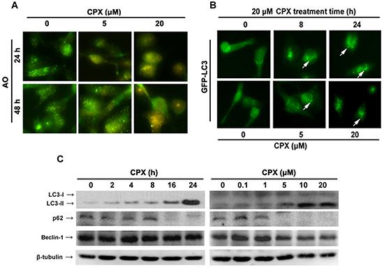 CPX induces autophagy in rhabdomyosarcoma cells.