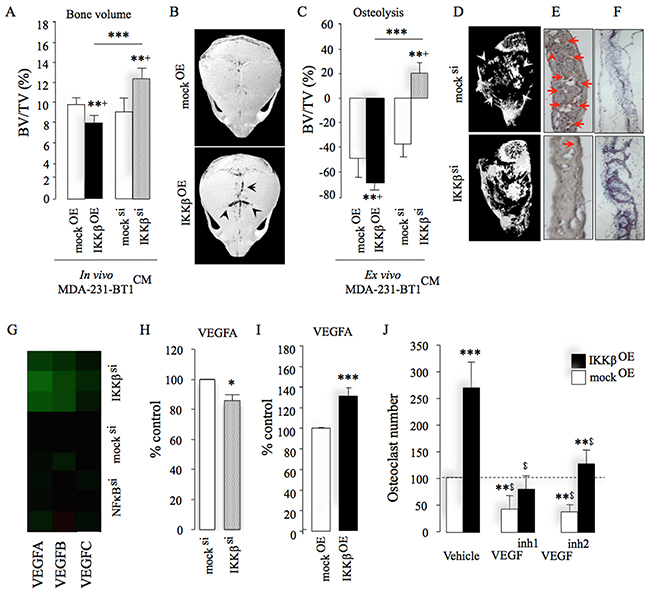 IKKβ regulates osteotropic breast cancer cell behaviour by engaging VEGFA.