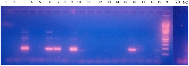 Patient-specific BCR-ABL1 gDNA detection in the primitive fraction.